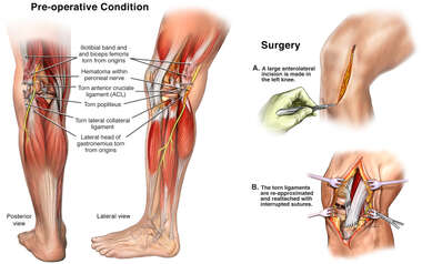 Left Knee Injuries and Surgical Repairs