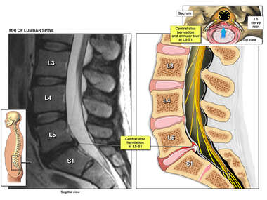 Central Disc Herniation and Annular Tear at L5-S1