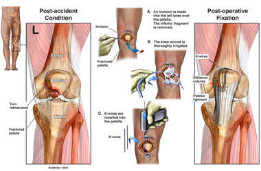 Left Patellar Fracture with Surgical Repair