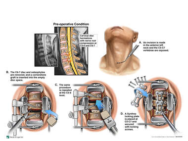 Cervical Disc Herniations with Double Level Anterior Discectomy and Fusion