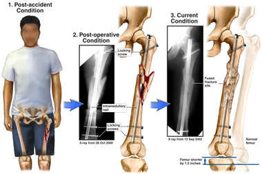 Post-surgical Comminuted Fracture of the Left Femoral Shaft