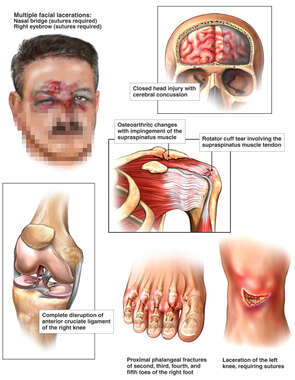Injuries to the Face, Brain, Shoulder, Knee and Foot