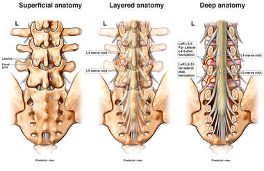 Lumbar Spine Layers with Left Side Herniations and Nerve Root Impingement at L4-5 and L5-S1