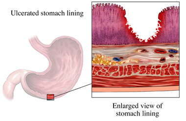 Acute Gastric Ulcer