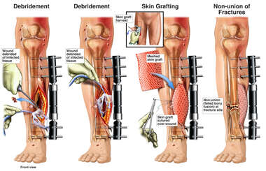 Tibial Fracture Fixation and Wound Debridement and Grafting