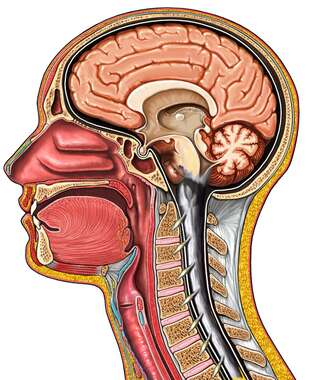 Cut-away View of Head - Pathology