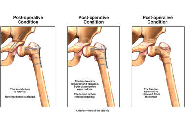 Repeat Osteotomies and Placement of Hardware in the Hip