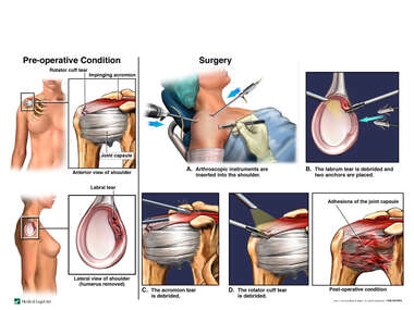 Right Shoulder Injuries with Arthroscopic Repairs and Subsequent Capsulitis