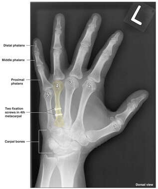 Surgical Fixation of the Left Hand