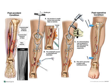 Comminuted Lower Leg Fractures and Surgical Fixation