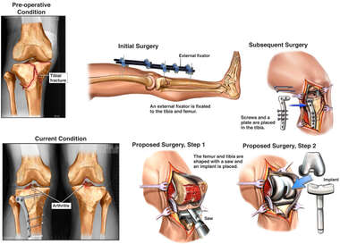 Right Tibial Plateau Fracture with External and Internal Surgical Fixation and Proposed Surgery