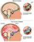 Post-traumatic Injury of the Brain and Pituitary Gland