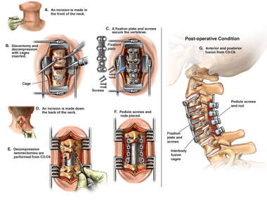Future C3-C6 Anterior and Posterior Cervical Decompression and Fusion with Instrumentation