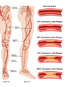 Vascular Anatomy of the Left Lower Extremity with Occlusion