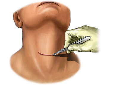 Transverse Neck Incision