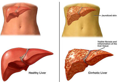 Normal Liver Anatomy Versus Stage Four Cirrhosis of Liver