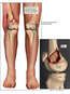 Right Knee Injury vs. Current Deformities