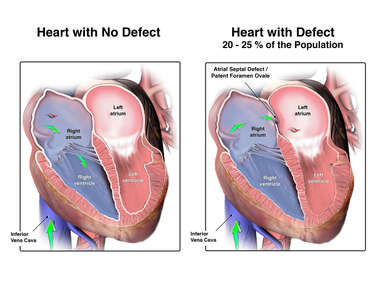 Normal Heart vs. Heart with Patent Foramen Ovale