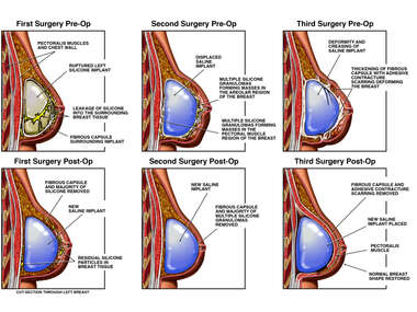 Progression of Left Breast Condition