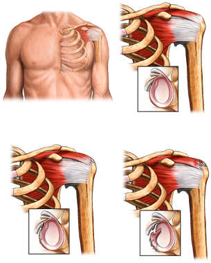 Left Shoulder Rotator Cuff Tear
