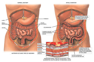 Progression of Colon Condition Including Diverticulosis, Ulcerative Colitis and Polyps