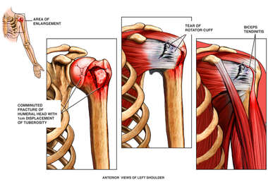 Shoulder Fracture and Torn Rotator Cuff Ligament