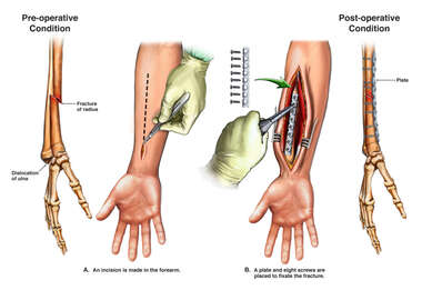 Right Forearm Fracture with Surgical Fixation