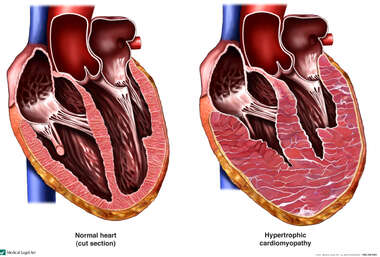 Hypertrophic Heart