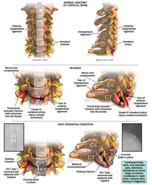 Cervical Spine Injuries and Repair
