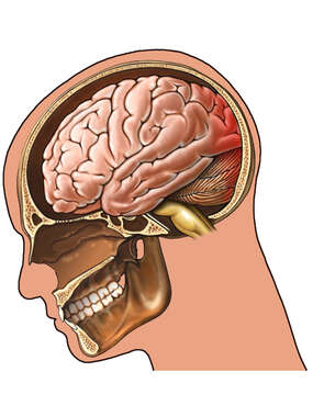 Traumatic Brain Injury - Whiplash Closed Head Injury