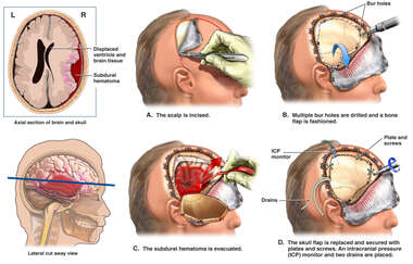 Brain Surgery - Severe Head Injury with Surgical Craniotomy