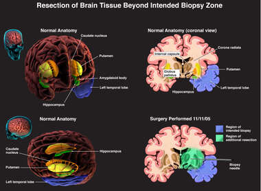 Resection of Brain Tissue Beyond Intended Biopsy Zone