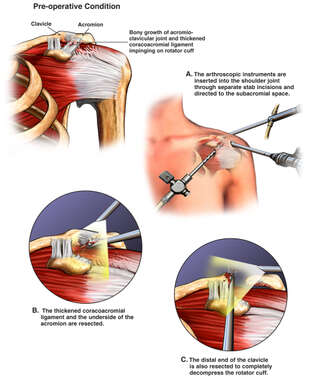 Left Shoulder Impingement Syndrome with Arthroscopic Surgical Decompression