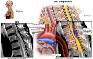 Thoracic AVM (Arteriovenous Malformation) with Spinal Cord Injury