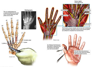 Surgical Repair of Traumatic Left Hand Amputation