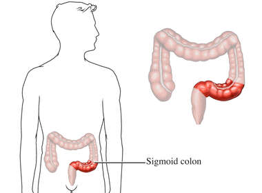 Anatomy of Sigmoid Colon