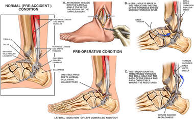 Lateral Ankle Instability with Surgical Reconstruction