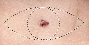 Melanoma Excision
