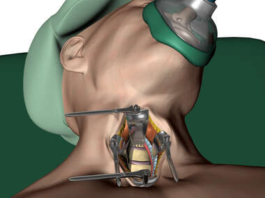 Anterior Cervical Exposure