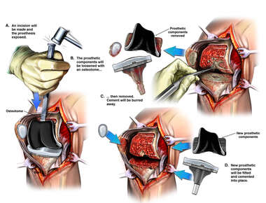 Future Revision of Knee Arthroplasty