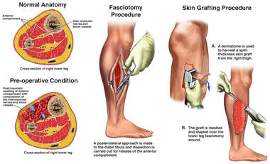 Compartment Syndrome of the Right Lower Leg with Surgical Repairs