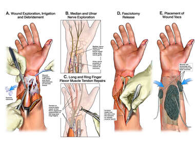Additional Surgical Repairs of the Right Forearm