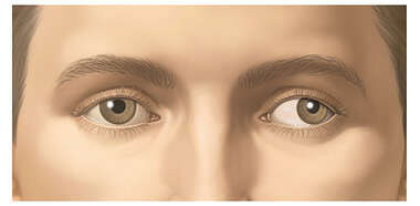 Appearance of Strabismus (Impaired Side to Side Movement)