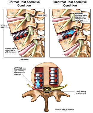 Displacement of Fusion Cage with Lumbar Nerve Root Impingement