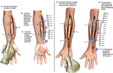 Surgical Fixation of Left Forearm Fractures