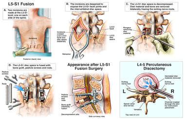 Surgical Repairs of the Lumbar Spine