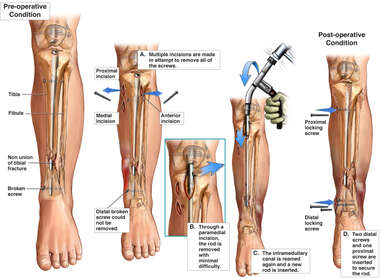 Non-union of the Left Tibia with Additional Surgical Repairs