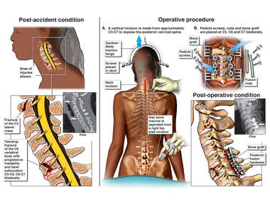 Cervical Spine Fractures with Posterior Spinal Fusion