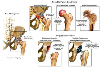 Possible Future Conditions and Surgeries of Right Hip Joint After Trauma