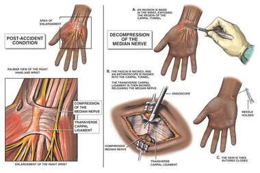 Right Hand Carpal Tunnel Syndrome with Surgical Release